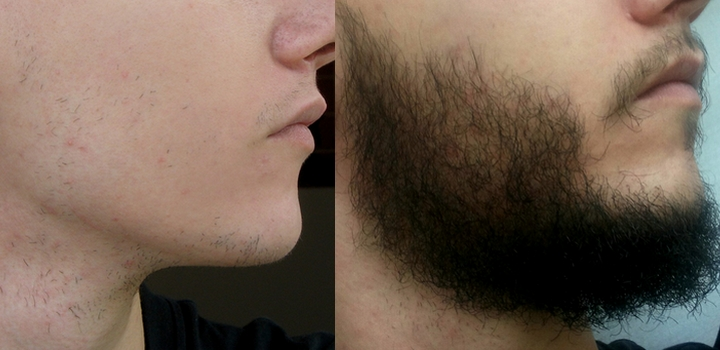 Minoxidil-barbe-avant-apres-4